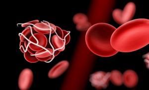 ทำความรู้จักหลอดเลือดดำอุดตัน ภัยเงียบที่คร่าชีวิต 1 ใน 4 ของประชากรโลก